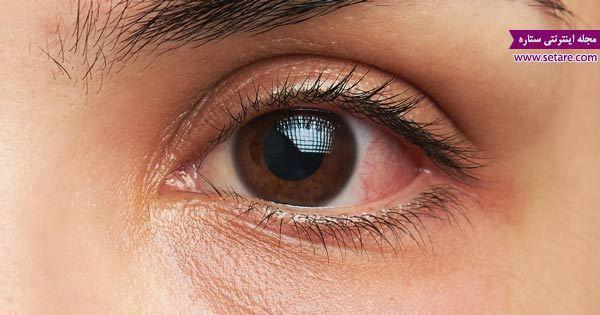 علت و علائم عفونت چشم چیست؟